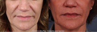 Juvederm Ultra Plus before 1391543