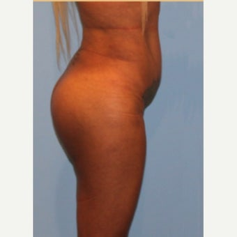 Butt Augmentation 1864295