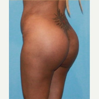 Butt Augmentation after 1864295