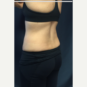 25-34 year old woman treated with SculpSure after 3168625