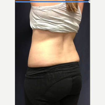 25-34 year old woman treated with SculpSure before 3168625