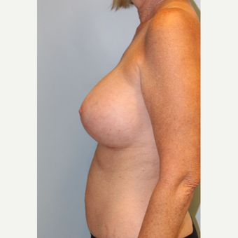 45-54 year old woman treated with Breast Augmentation after 3709870