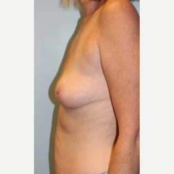 45-54 year old woman treated with Breast Augmentation before 3709870