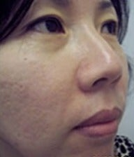 25-34 year old woman treated with Acne Scars Treatment