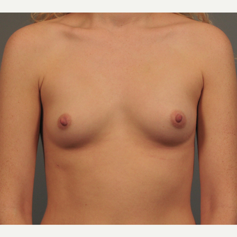 25-34 year old woman treated with Breast Implants before 3344446