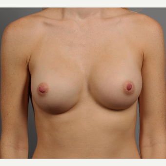 25-34 year old woman treated with Breast Implants after 3344446