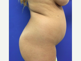 18-24 year old woman treated with Brazilian Butt Lift