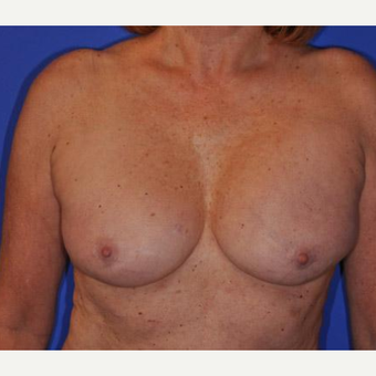 Breast Augmentation before 3206540