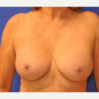 Breast Augmentation after 3206540