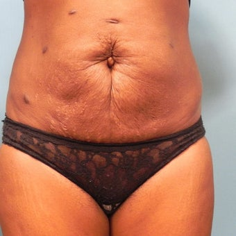 45-54 year old woman treated with Slim Lipo before 1789893