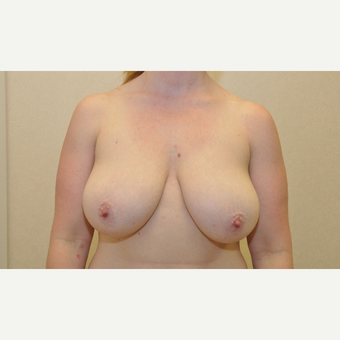 35-44 year old woman treated with Breast Reduction before 3103141