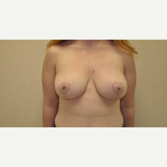 35-44 year old woman treated with Breast Reduction after 3103141