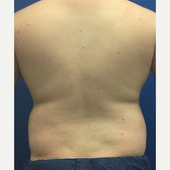 25-34 year old man treated with Laser Liposuction before 3495963