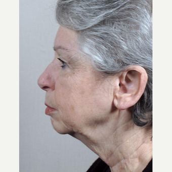 65-74 year old woman treated with Mini-Facelift before 3212980