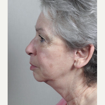 65-74 year old woman treated with Mini-Facelift after 3212980
