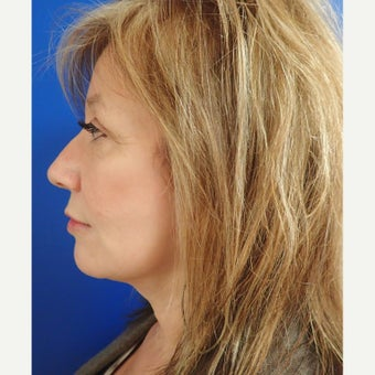 45-54 year old woman treated with Facelift after 2618422