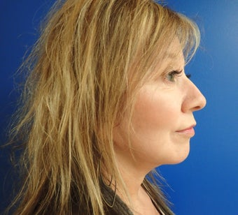45-54 year old woman treated with Facelift 2618422