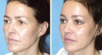 Endoscopic Brow Lift and Mid Face Lift