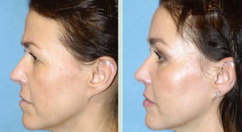 Endoscopic Brow Lift and Mid Face Lift 1387130