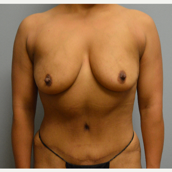 25-34 year old woman treated with Breast Lift with Implants before 3629391