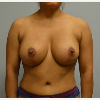 25-34 year old woman treated with Breast Lift with Implants after 3629391