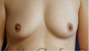 25-34 year old woman treated with Breast Augmentation before 3657009