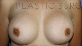 25-34 year old woman treated with Breast Augmentation after 3657009