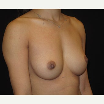 25-34 year old woman treated with Breast Augmentation 1742973
