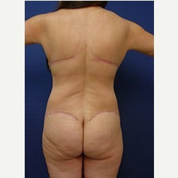 55-64 year old woman treated with Body Lift after 2058166