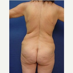 55-64 year old woman treated with Body Lift before 2058166
