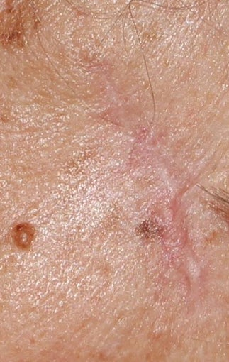 62 year old Female treated for old surgical scar L cheek before 1445106