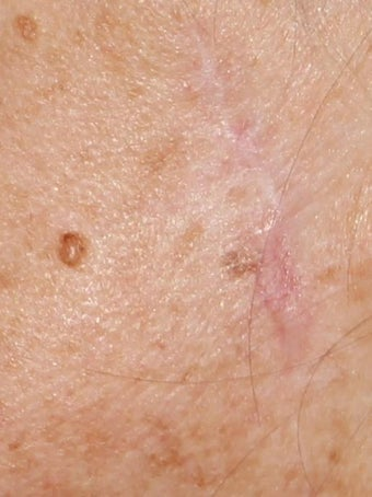 62 year old Female treated for old surgical scar L cheek after 1445106