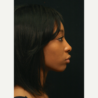 18-24 year old woman treated with African American Rhinoplasty