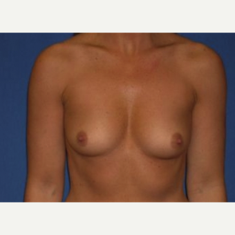 25-34 year old man treated with Breast Augmentation before 3220014