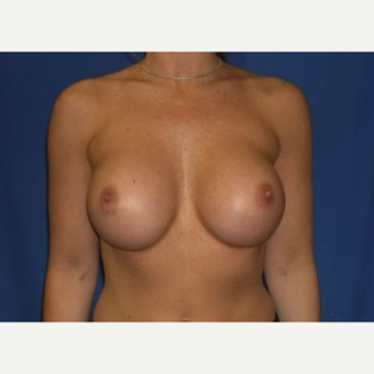 25-34 year old man treated with Breast Augmentation after 3220014