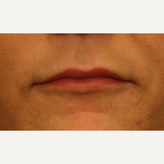 35-44 year old woman treated with Lip Augmentation before 2813946