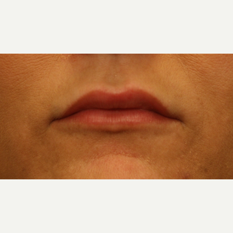 35-44 year old woman treated with Lip Augmentation after 2813946