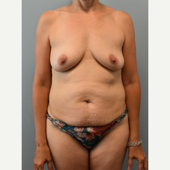 45-54 year old woman treated with Mommy Makeover before 3294075