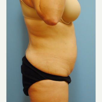 35-44 year old woman treated with Liposuction after 3069302