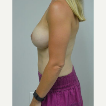 25-34 year old woman treated with Breast Lift with Implants after 3219902