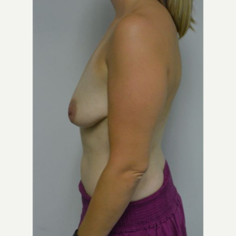 25-34 year old woman treated with Breast Lift with Implants before 3219902