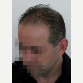 44 years old man treated with FUE Hair Transplant after 3069596