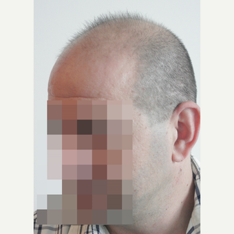 44 years old man treated with FUE Hair Transplant before 3069596