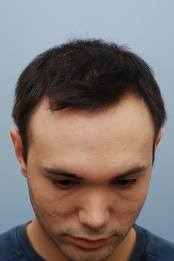 26 year old male treated for hair loss after 1094693
