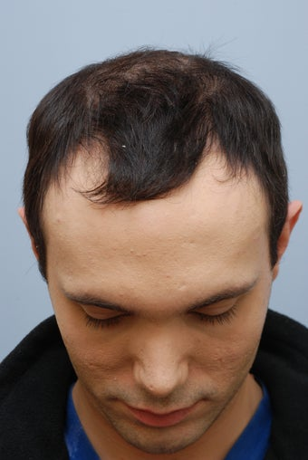 26 year old male treated for hair loss before 1094693