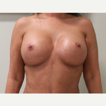 35-44 year old woman treated with Breast Augmentation after 3697192