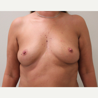 35-44 year old woman treated with Breast Augmentation before 3697192