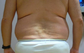 47 year old man has Liposuction Surgery