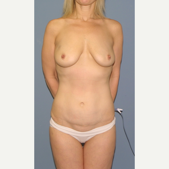 45-54 year old woman treated with Breast Lift with Implants before 3502491