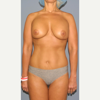 45-54 year old woman treated with Breast Lift with Implants after 3502491